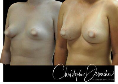 Augmentation mammaire par prothèses – voie périaréolaire : Round block