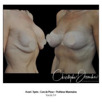 Cure de ptose mammaire plus prothèses