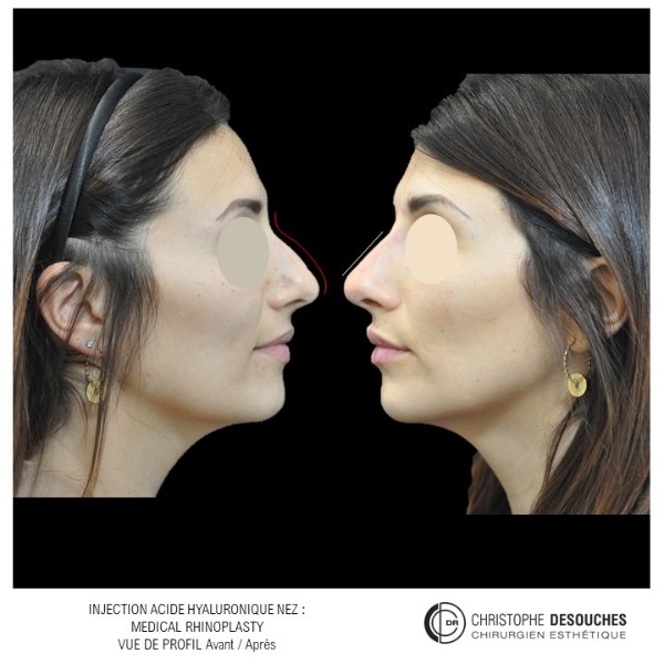 Médicale rhinoplastie : injection d'acide hyaluronique