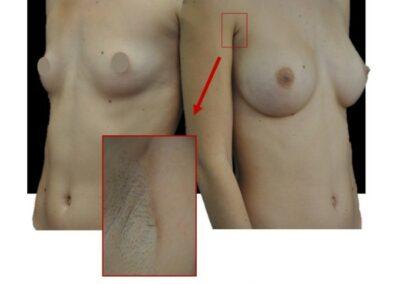 Augmentation mammaire par prothese par voie axillaire