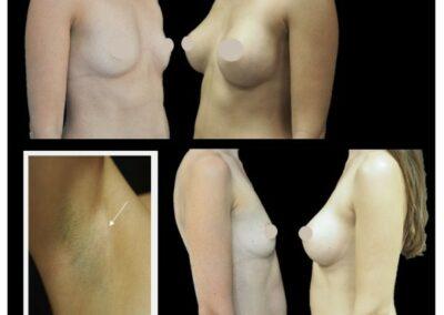 Augmentation mammaire par prothèse, voie axillaire, pré pectoral et sous fasciale
