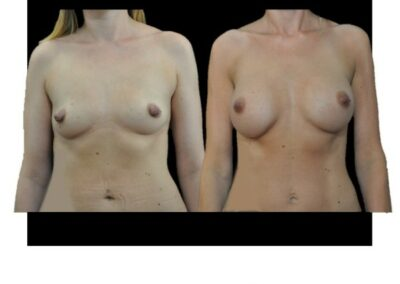 Réduction de la taille du mamelon associée à une augmenttation mammaire par prothèses