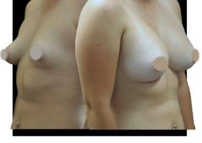 Harmonisation du buste féminin par prothèses