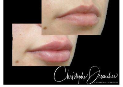 Augmentation du volume des lèvres grâce aux injections d'acide hyaluronique
