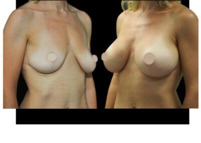 Augmentation mammaire par prothese – vue de 3/4