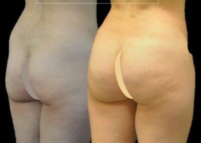 lipofilling des fesses/ brazillian butt lift