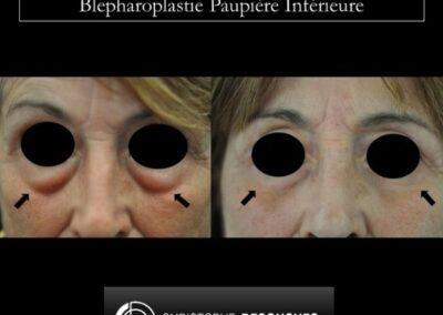 Blepharoplastie paupière inférieure