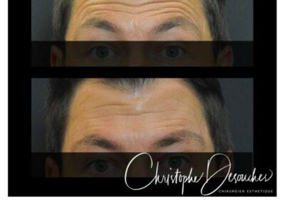 Injection de botox chez l'homme au niveau du front