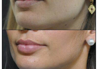 Lips augmentation / augmentation des levres par injection d'acide hyaluronique
