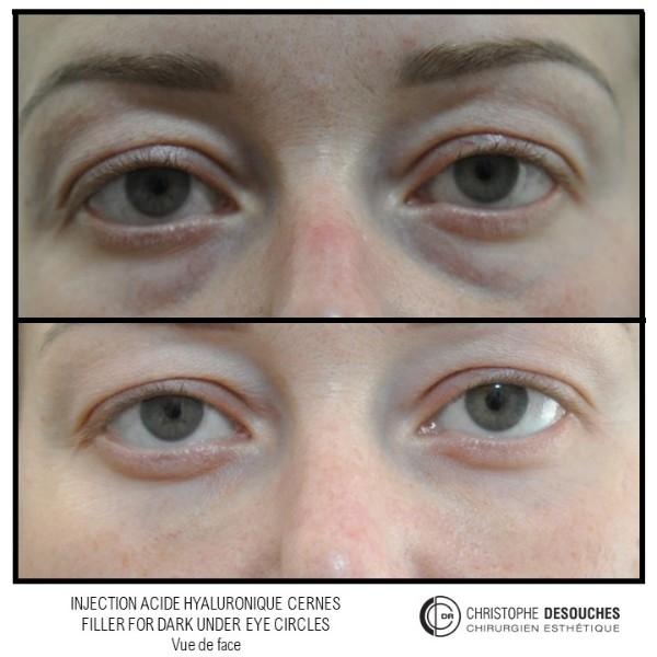Cerne foncé, dark under eye circles