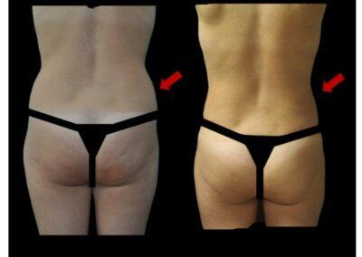 Résultat de la liposuccion pour lipofilling des seins