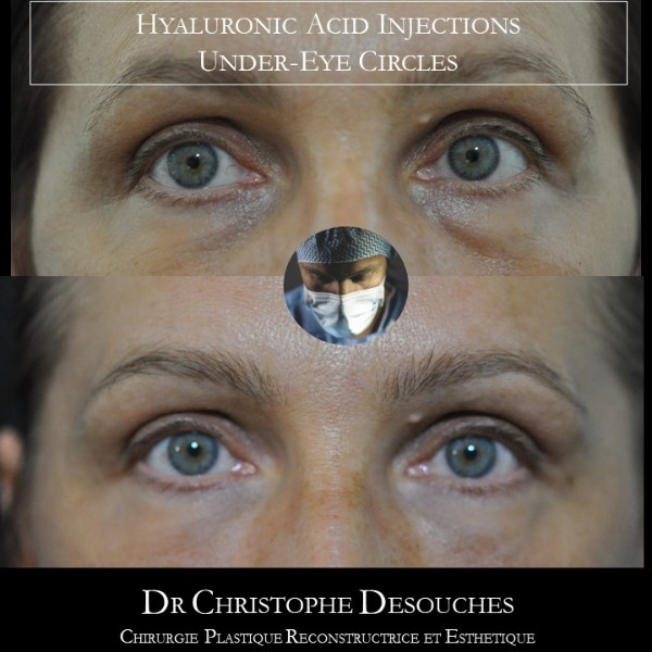 Injection d'Acide hyaluronique pour harmoniser le regard sans chirurgie
