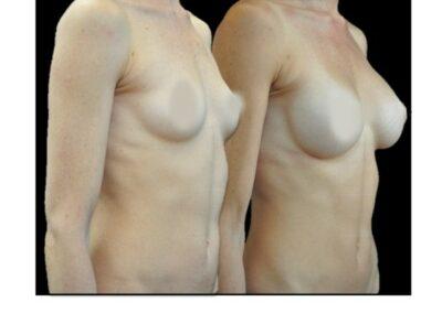 Augmentation Mammaire par prothèse