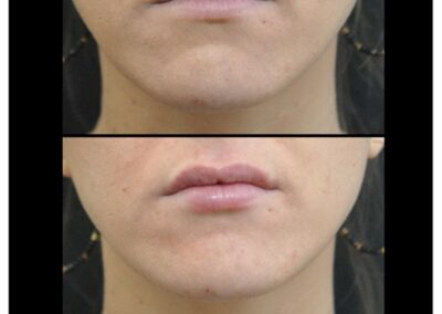 Lips augmentation / augmentation des levres par injection d'acide hyaluronique