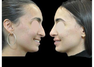 Profiloplastie et rhinoplastie de la pointe