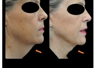 lifting cervico-facial ou lipoaspiration du cou