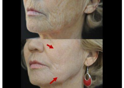 Bienfaits du Peeling pour votre visage