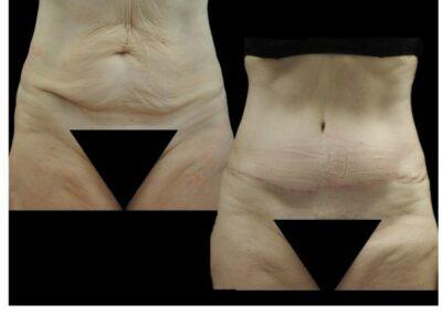 Lipectomie abdominale associée à une liposuccion