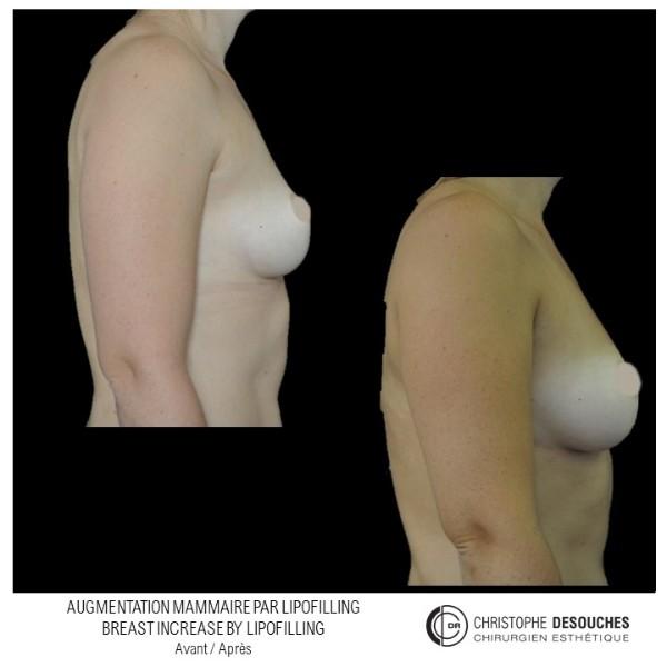 Augmentation mammaire par lipofilling