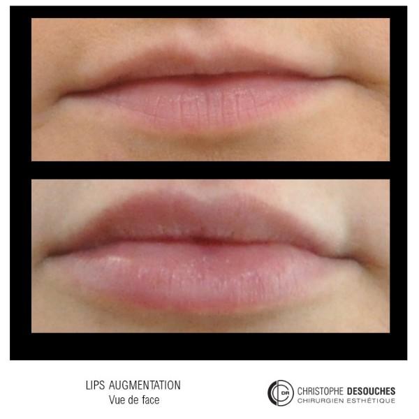 Augmentation des lèvres par injection d'Acide Hyaluronique