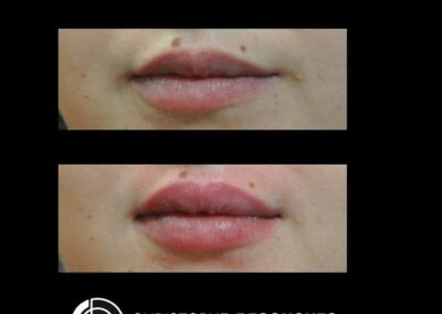 Lips augmentation, lèvres repulpé, acide hyaluronique, ourler redessiné