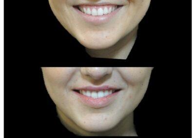 Harmonisation du sourire par injection d'acide hyaluronique au niveau des lèvres