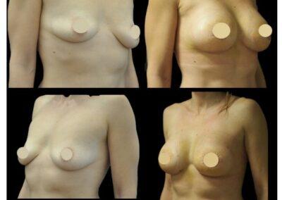 Augmentation mammaire par prothèses et round block