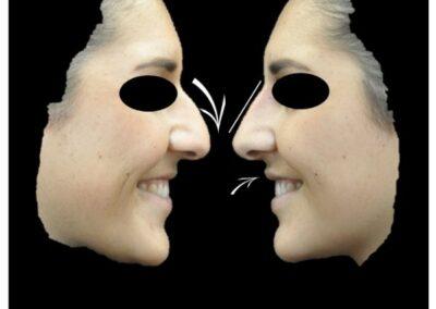 Profiloplastie par injection d'acide hyaluronique au niveau du nez et des lèvres