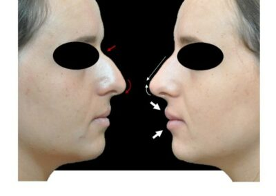 Harmonisation du nez et du sourire par injection d'acide hyaluronique