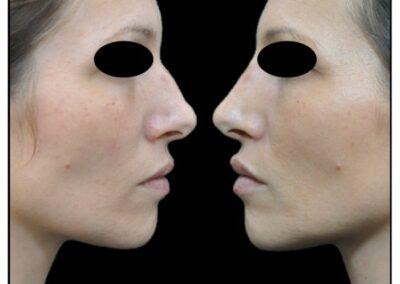 Embellir le profil sans chirurgie – la Profiloplastie médicale