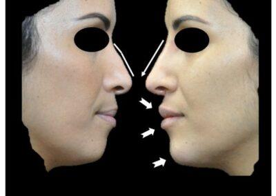 Profiloplastie médicale : l'art d'harmoniser le profil sans avoir recours à la chirurgie