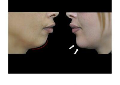 Genioplastie médicale : Harmonisation du profil par injection d'acide hyaluronique au niveau du menton