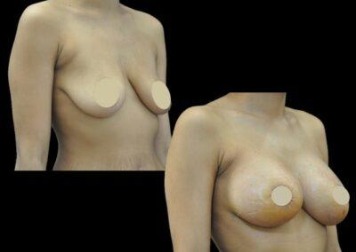 lifting du sein périi-aréolaire et implants mammaire