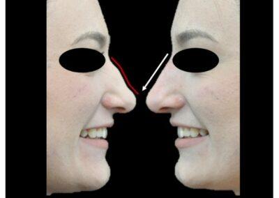 Rhinoplastie médicale : injections d'acide hyaluronique pour corriger le profil nasal