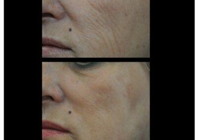 Peeling TCA 30% : une solution pour régénérer la peau et gommer les signes de l'âge
