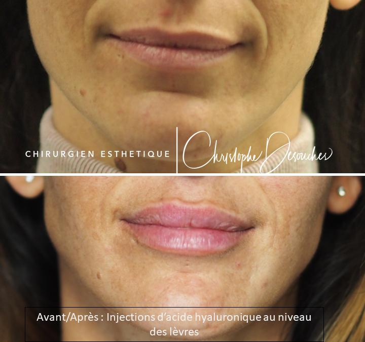 L'injection des lèvres