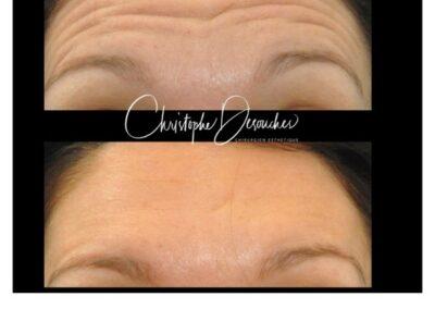 Injections de botox au niveau du front