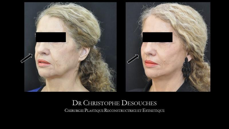 Lifting du visage par fil tenseur, sans chirurgie