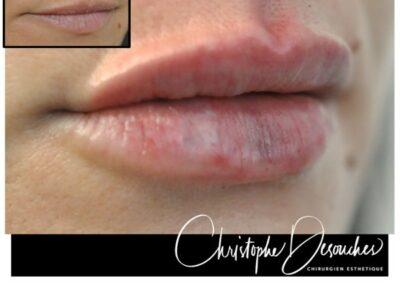 «Russian lips» – Augmentation des lèvres par injection d'acide hyaluronique