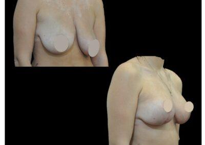 Lifting des seins et lipofilling