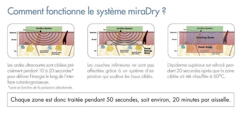 Miradry (transpiration excessive)