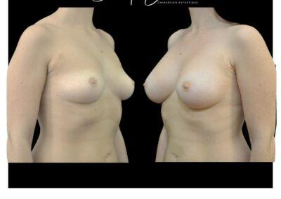 Augmentation mammaire par prothèses