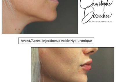Augmentation du volume des lèvres par injections d'acide hyaluronique
