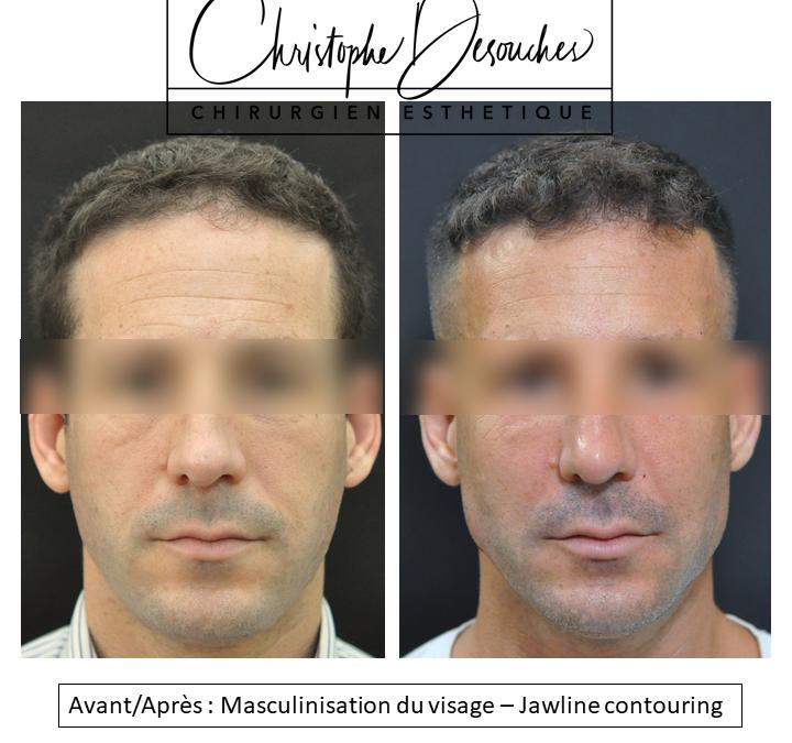 Masculinisation du visage