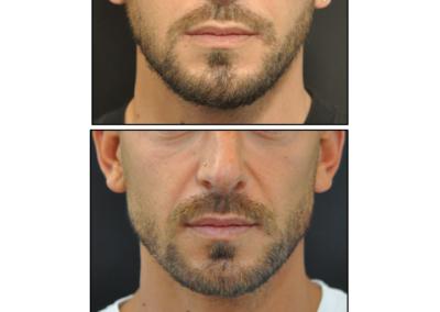 Masculinisation visage