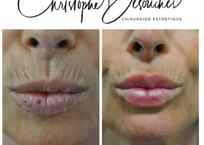 Acide Hyaluronique bouche, traitement des rides verticales et augmentation du volume des lèvres