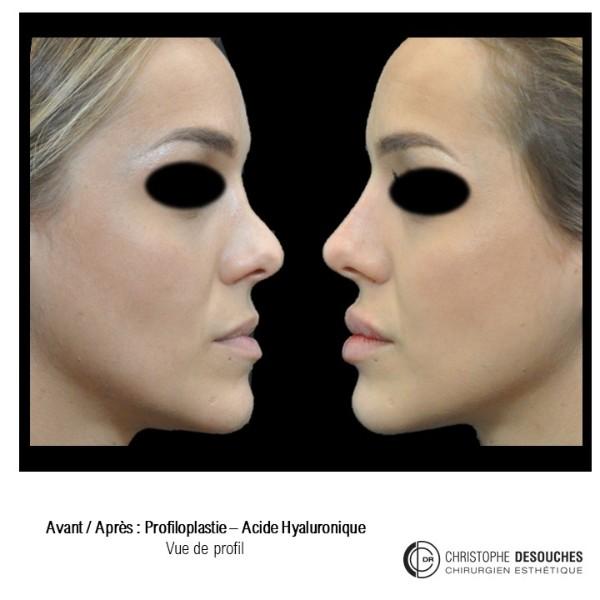 Profiloplastie médicale - injections d'acide hyaluronique