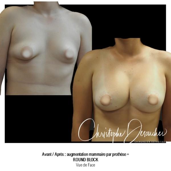 Prothèses mammaires et round block