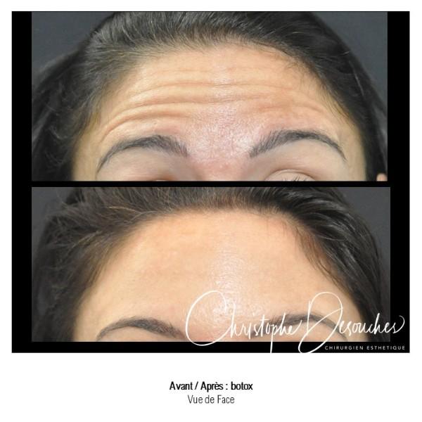 Injections de toxine botulique au niveau du front - Atténuer les rides d'expression grâce au botox