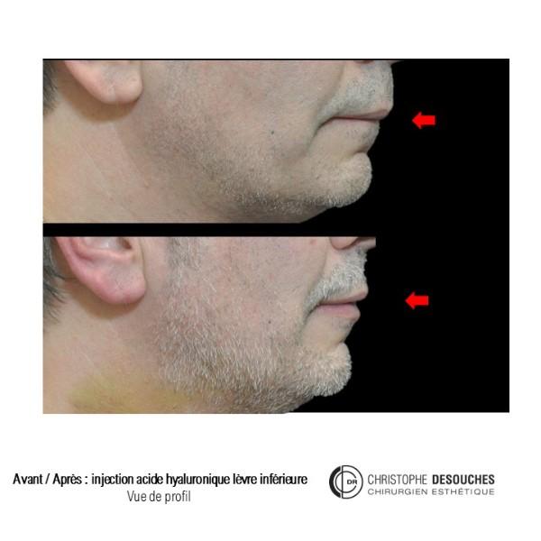 Augmentation du volume des lèvres chez l'homme
